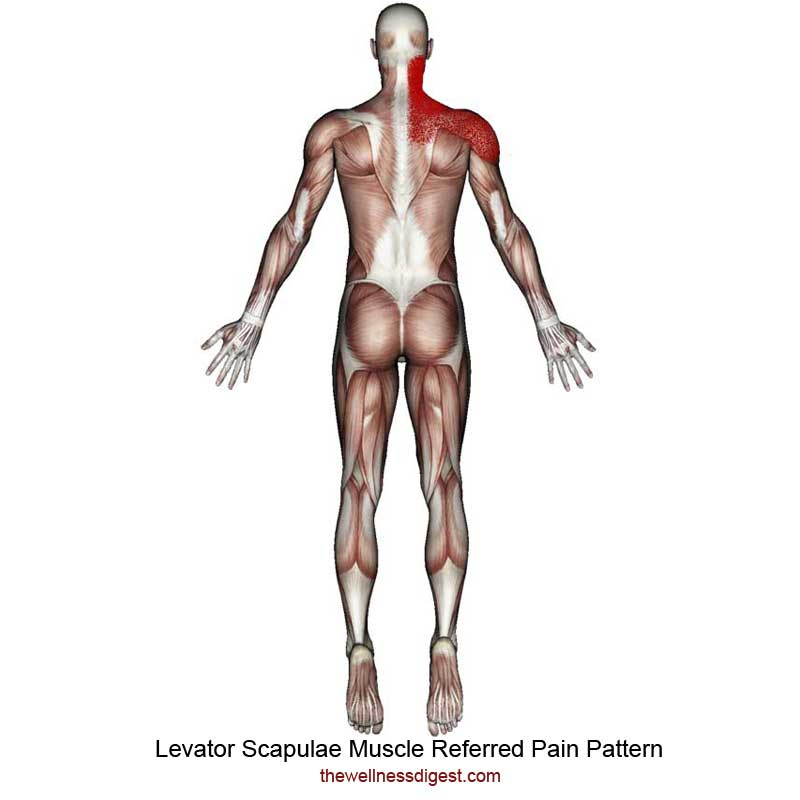 Levator Scapulae Referred Pain Pattern