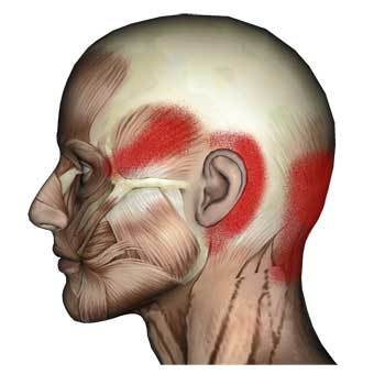Longissimus Capitis Muscle: Head, Ear, Eye and Neck Pain