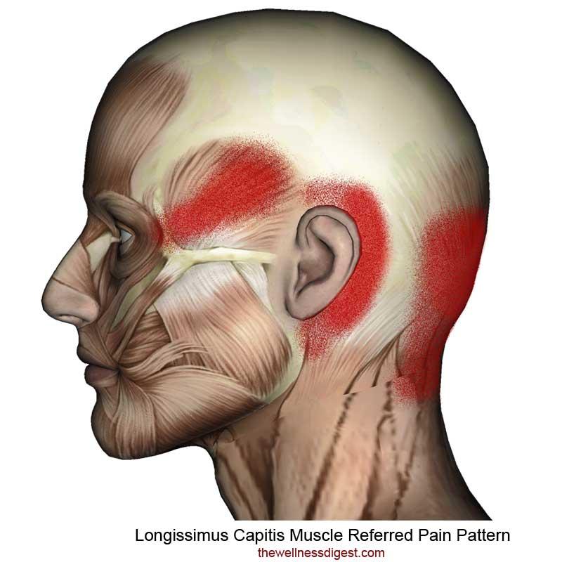 Longissimus Capitis Referred Pain Pattern