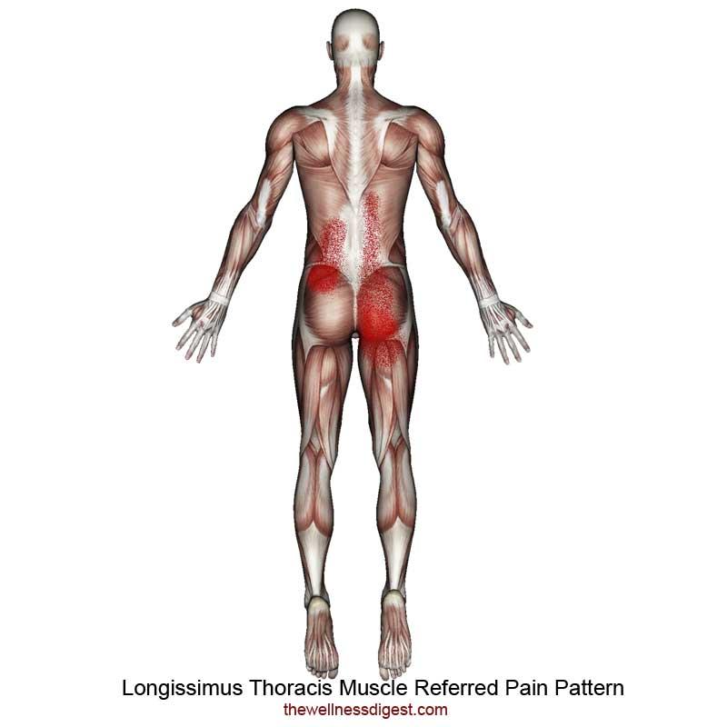 Longissimus Thoracis Referred Pain Pattern