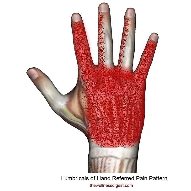 Lumbrical Hand Muscles Pain Pattern