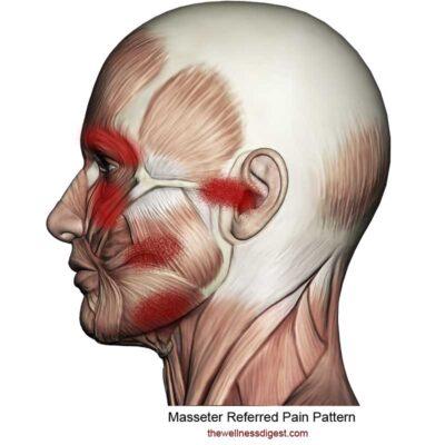Masseter Referred Pain Pattern