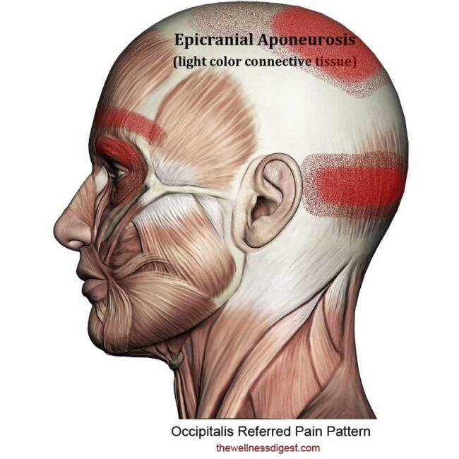 Occipitalis Referred Pain Pattern