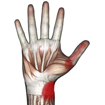 Opponens Pollicis Muscle: Thumb Pad, Thumb, Wrist Pain