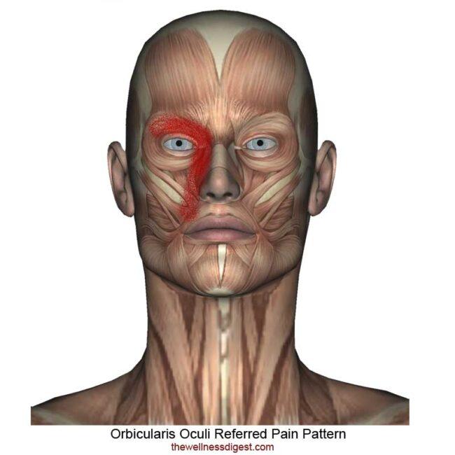 Orbicularis Oculi Referred Pain Pattern