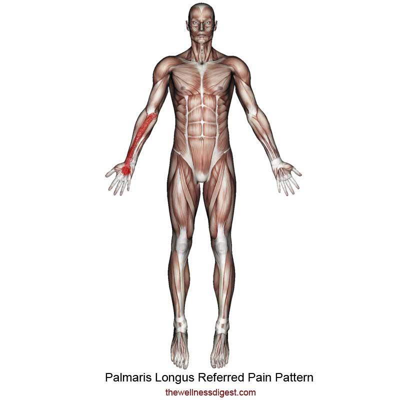 Palmaris Longus Referred Pain Pattern