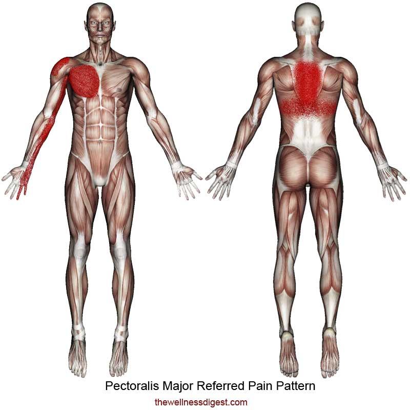 Pectoralis Major Referred Pain Pattern