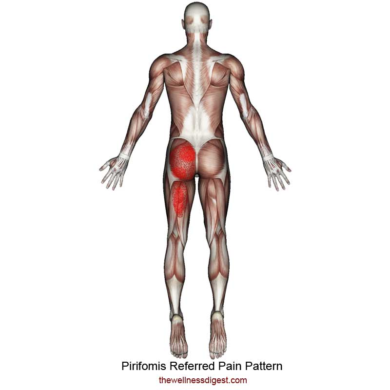 Piriformis Referred Pain Pattern