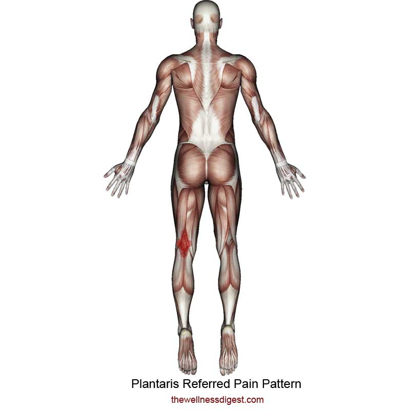 Plantaris Pain Pattern