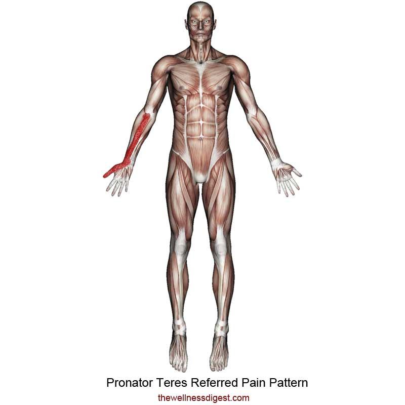 Pronator Teres Referred Pain Pattern