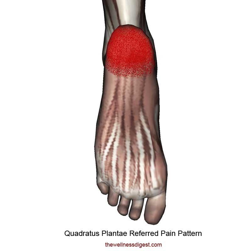Quadratus Plantae Pain Pattern