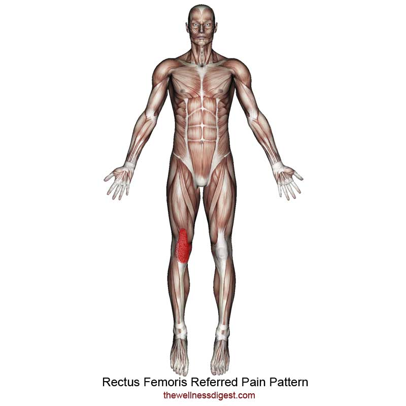 Rectus Femoris Referred Pain Pattern