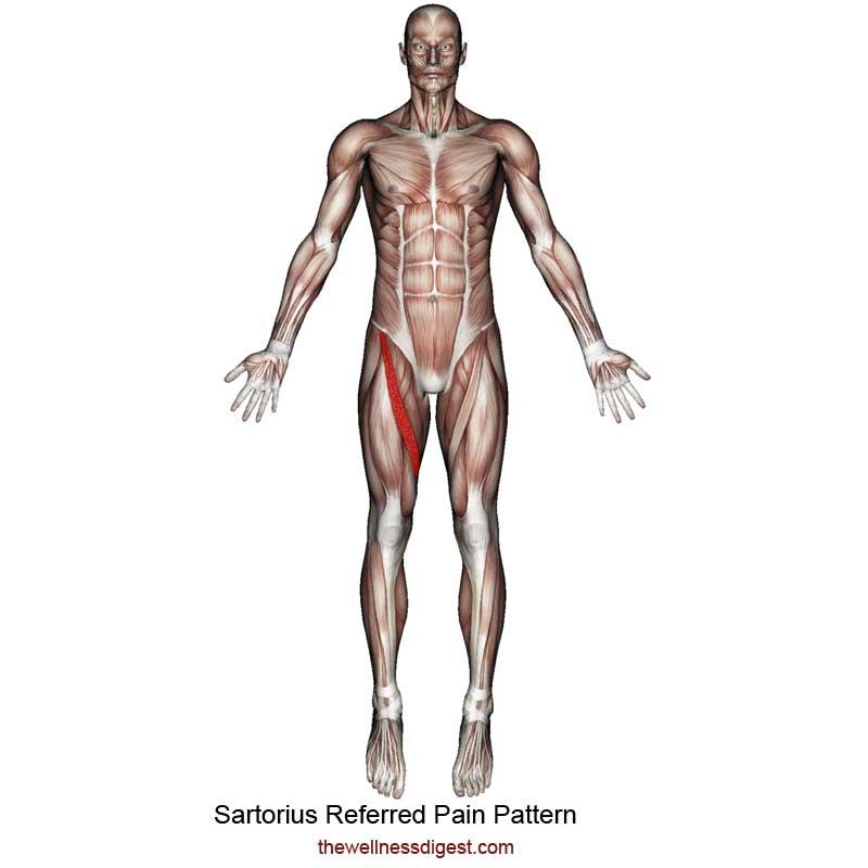 Sartorius Muscle Referred Pain Pattern