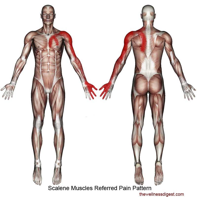 Scalene Muscles Pain Pattern