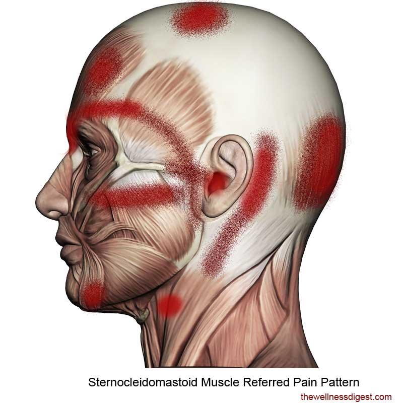 Sternocleidomastoid Referred Pain Pattern