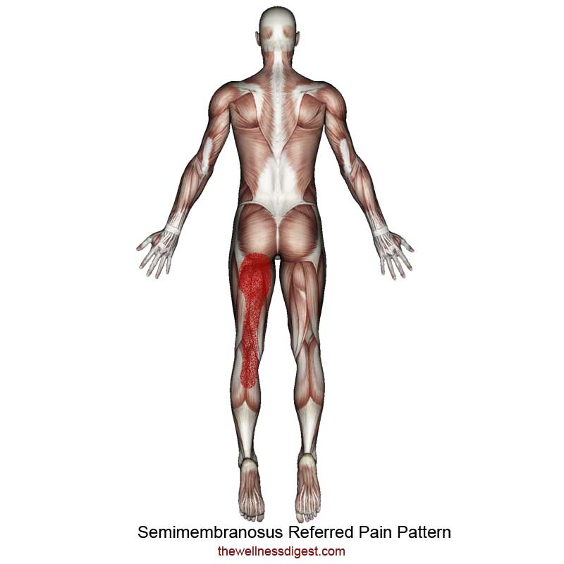 Semimembranosus Referred Pain Pattern