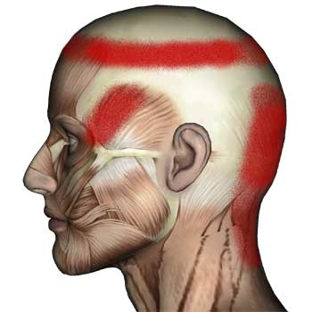 Semispinalis Capitis Muscle: Neck and Head Pain
