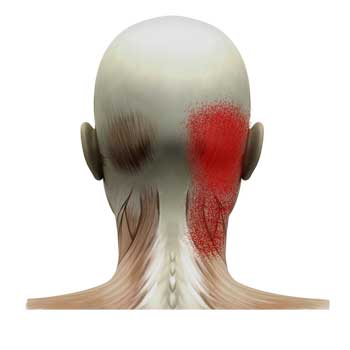Semispinalis Cervicis Muscle: Head and Neck Pain
