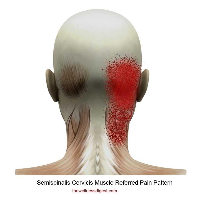 Semispinalis Referred Pain Pattern