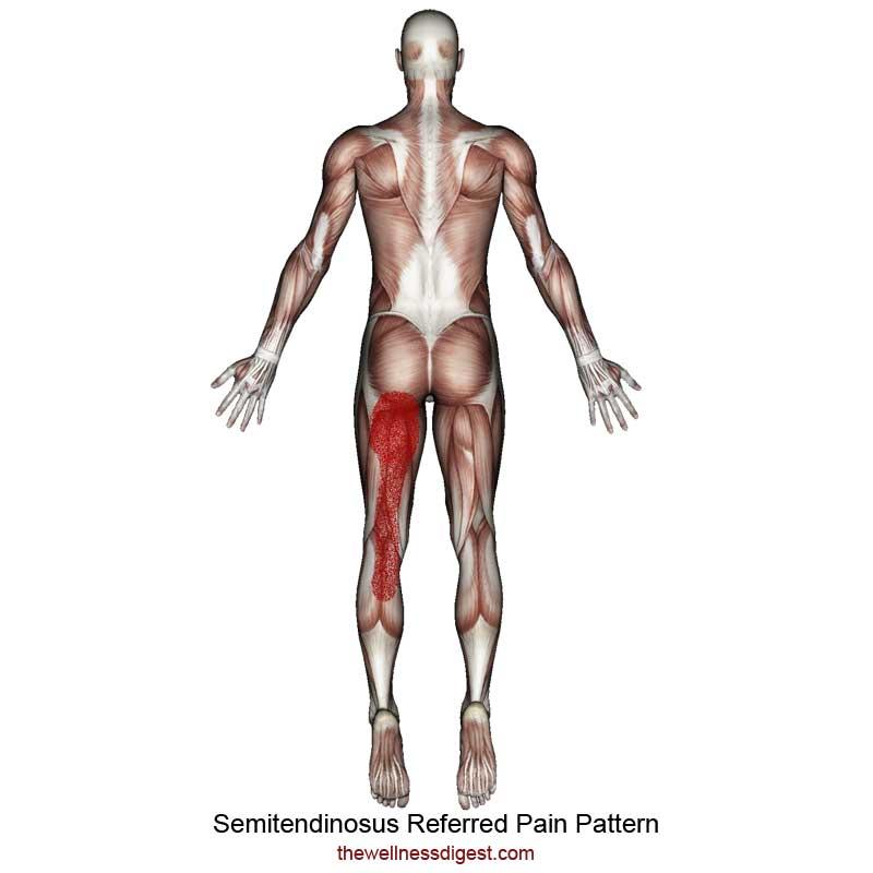 Semitendinosus Referred Pain Pattern