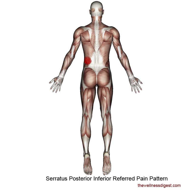 Serratus Posterior Inferior Referred Pain Pattern
