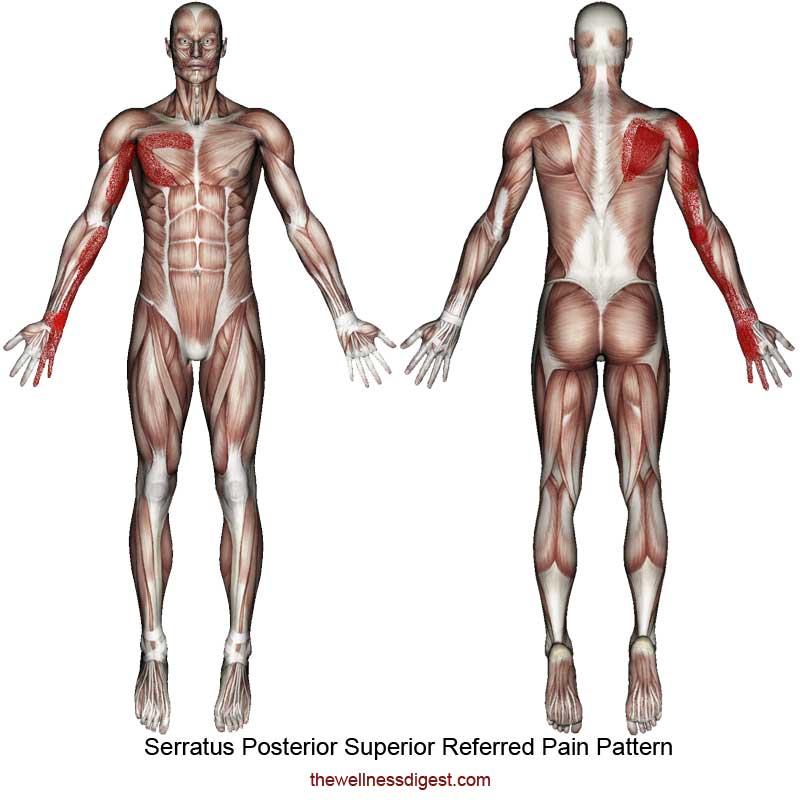 Serratus Posterior Superior Referred Pain Pattern