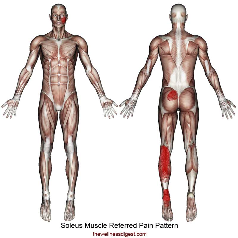 Soleus Muscle Referred Pain Pattern