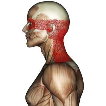 Splenius Cervicis Muscle: Headache, Eye Pain, Blurred Vision