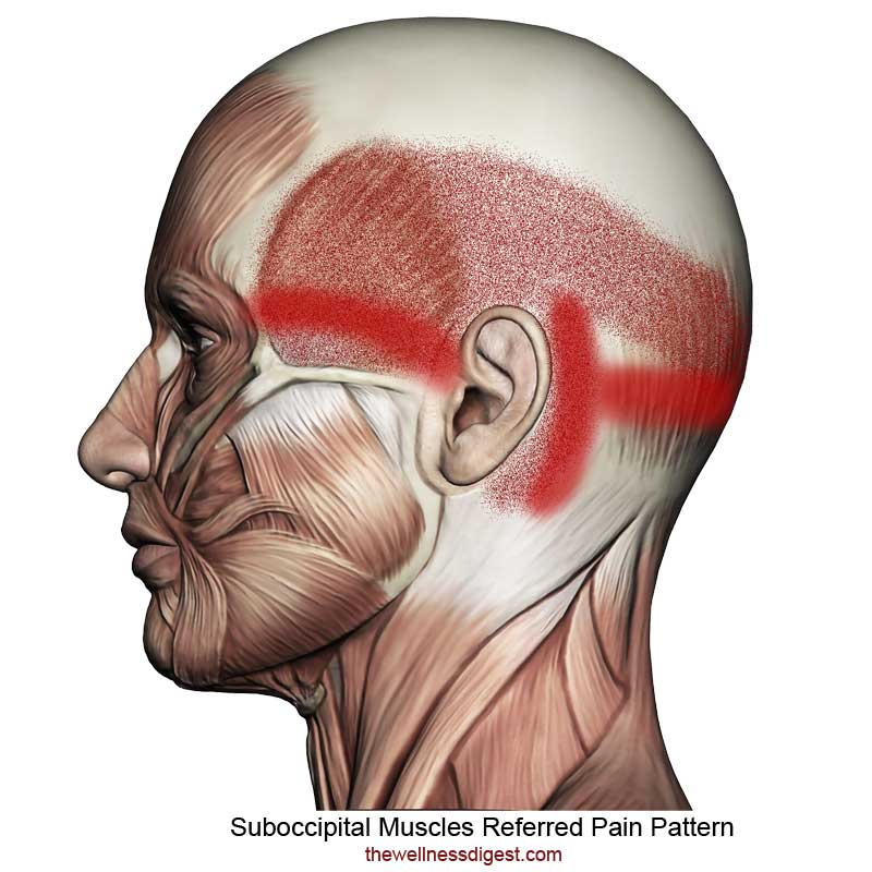 Suboccipital Muscles Referred Pain