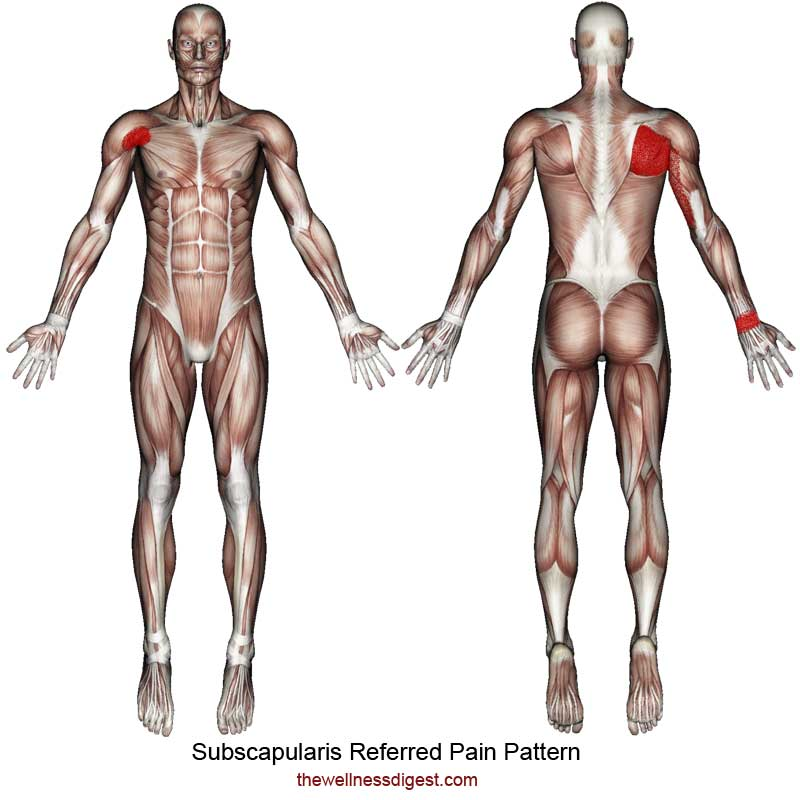 Subscapularis Referred Pain Pattern
