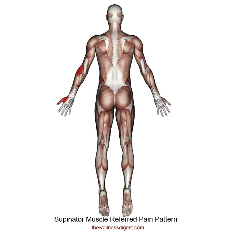 Supinator Muscle Referred Pain Pattern