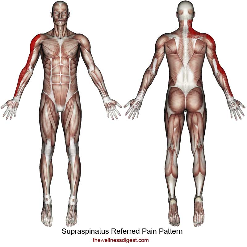 Supraspinatus Referred Pain Pattern