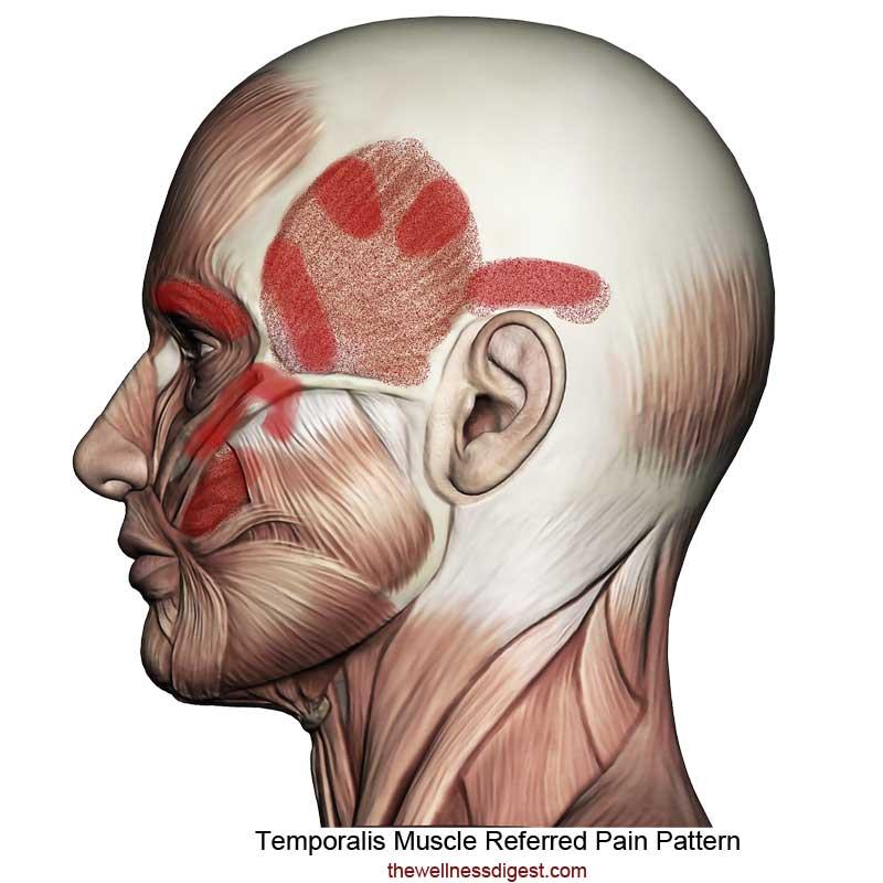 Temporalis Referred Pain Pattern