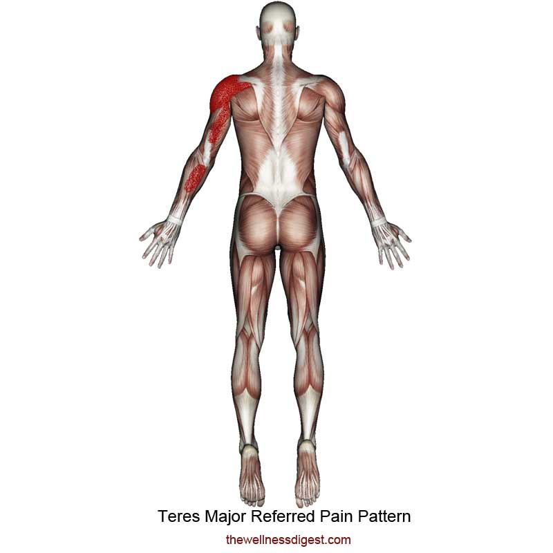 Teres Major Referred Pain Pattern