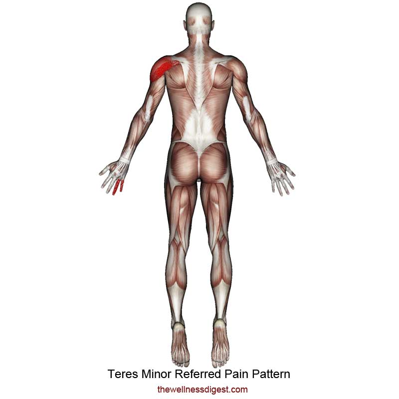 Teres Minor Referred Pain Pattern