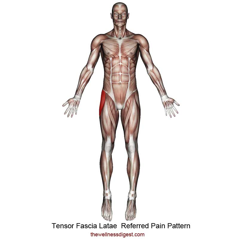 Tensor Fasciae Latae Referred Pain Pattern