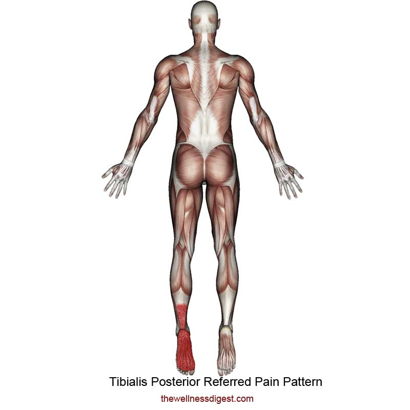 Tibialis Posterior Referred Pain Pattern