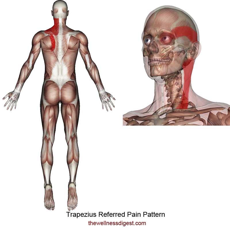 Trapezius Referred Pain Pattern