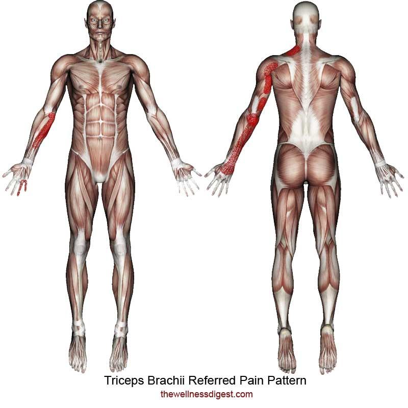 Triceps Brachii Referred Pain Pattern