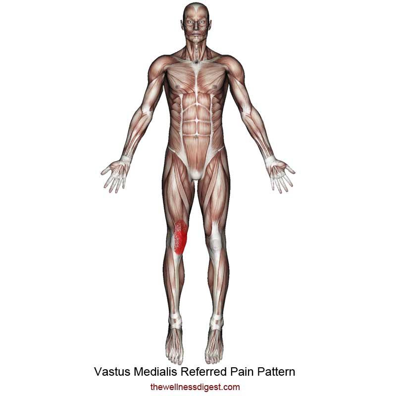 Vastus Medialis Referred Pain Pattern