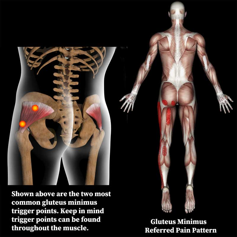 Gluteus minimus trigger points and the referred pain pattern.