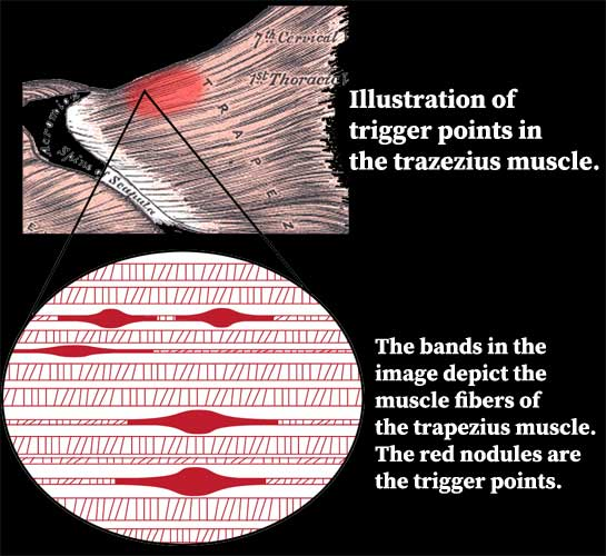 Illustration of trigger points in the trapezius muscle.